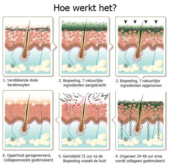 De werking van Biopeeling